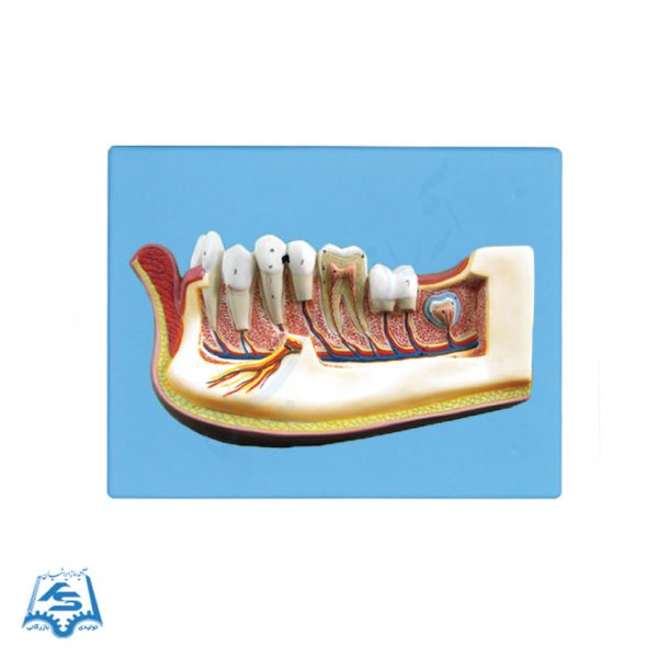 مولاژ دندان نیم فک (دیواری)